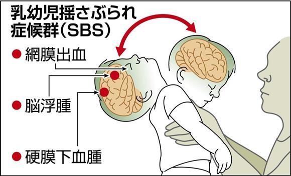乳幼児揺さぶられ症候群(SBS)