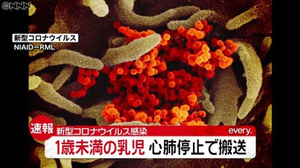 山梨で新型コロナ感染の乳児 重い肺炎