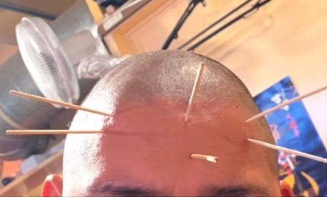 日大ラグビー部の伊藤武ヘッドコーチが部員の頭に爪楊枝7本を刺す その後LINEで「チクったやつ殺してー」