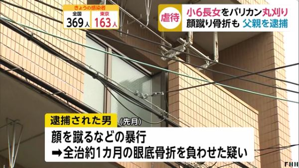 笹谷正夫容疑者が顔を蹴るなどの暴行を加え全治1ヶ月の眼底骨折の大怪我を負わせる