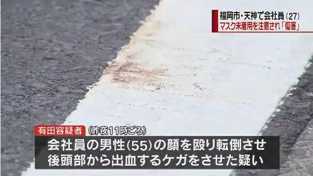 有田雄大容疑者が55歳男性の顔殴り転倒させ全治約1カ月の切り傷を負わせる
